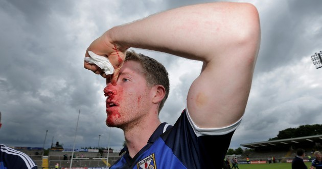 Bloodbath – Rory Dunne's war wounds after Cavan's win over Fermanagh