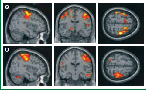 Functional MRI Scans Show Abnormal Activation In The Brain Average During Finger Tapping With Left Hand Three Adolescents Increased