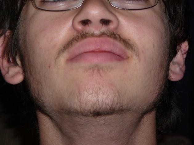 First facial hair
