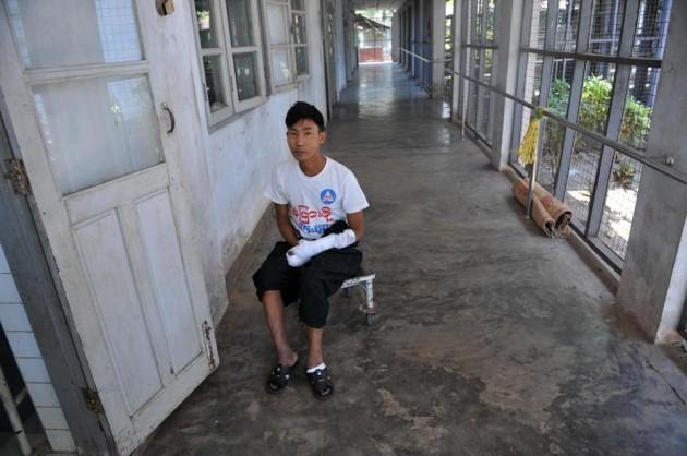 legs Myanmar spread