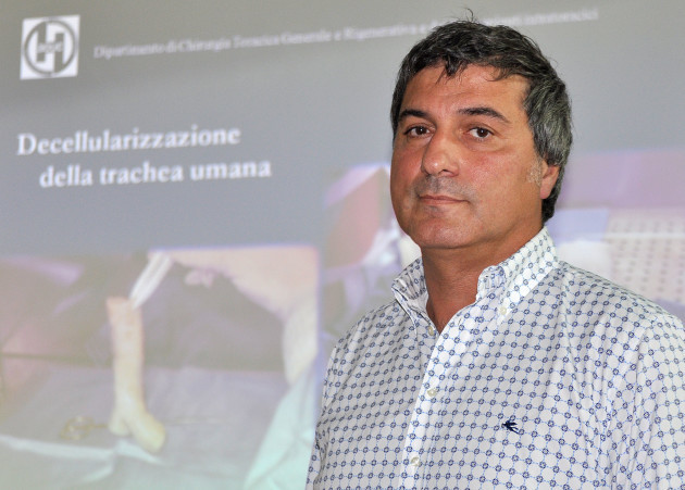 Italy Windpipe Transplant