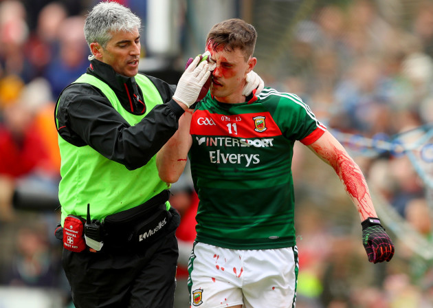 Diarmuid O'Connor injured