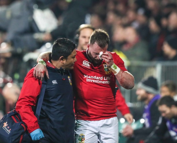 Stuart Hogg goes off with a blood injury with Prav Mathema