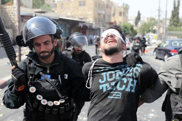 MIDEAST-JERUSALEM-CLASHES
