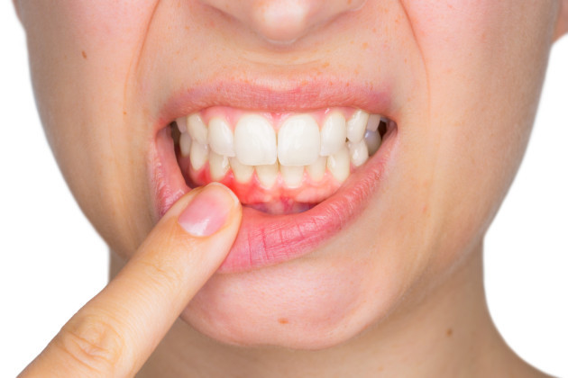 Women With History Of Gum Disease At Higher Risk Of Cancer Study Says