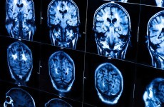 People with epilepsy 11 times more likely to die prematurely