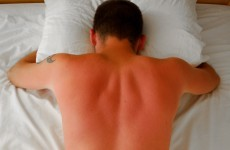 Put away the aftersun: scientists may have found an end to sunburn pain