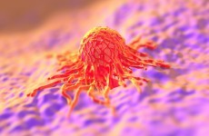 Well-off 'more likely to have cervical cancer screening' - except in Northern Ireland