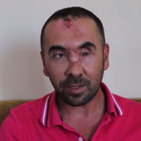 Turkish authorities accused of sexual abuse and severe beating of protesters
