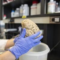 Gene mutation speeds up brain decline in Alzheimer's