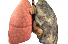 Ireland is at the bottom of European lung health table