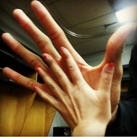 An NBA player's freakishly large hands compared to a normal person's