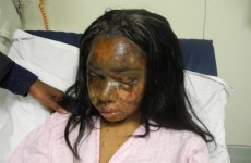 London woman driven by jealousy attacks former friend with acid
