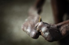 Leprosy victims crippled and suffering because of fear and prejudice