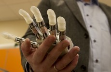 This bionic hand can sense shape and texture