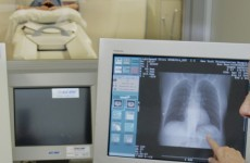 New way to avoid risky biopsies in diagnosis of deadly lung disease