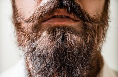 New York hipsters have created a beard transplant boom
