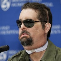 Recipient of the first US full face transplant makes appearance