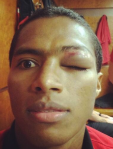 Antonio Valencia's selfie of his busted eye from last night's Champions League game