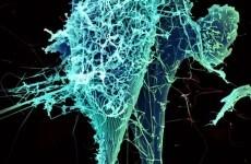DFA updates travel advice, as Guinea Ebola epidemic spreads