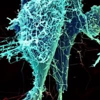 Aid agency worker dies as Ebola outbreak spreads