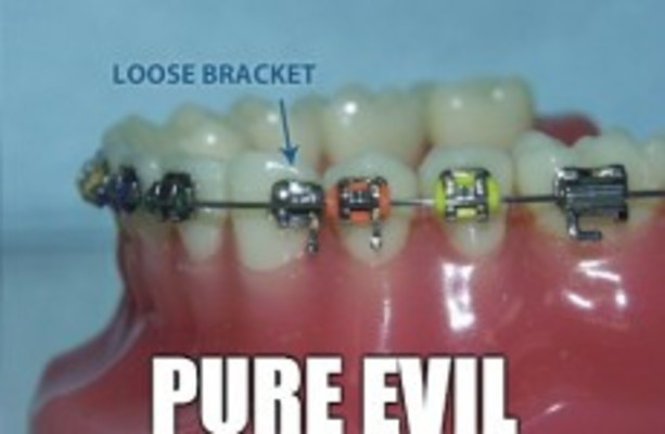 12 problems only people who had braces will understand · The