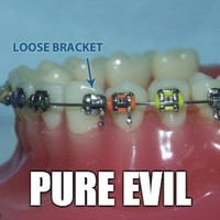 12 problems only people who had braces will understand