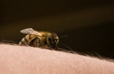 What's the worst place to be stung by a bee? This student has found out...