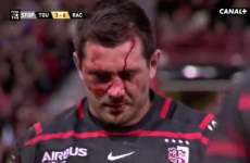 Florian Fritz sustains big knock to the head but returns to play after stitches