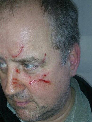 Fine Gael councillor scratched in face while canvassing in Clonakilty