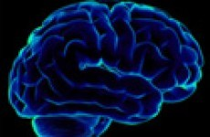 Irish research may lead to Alzheimer's breakthrough
