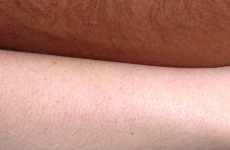 10 problems only people with Irish skin must face