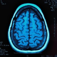 Europe wants to spend €1.2 billion on brains (but scientists are angry about it)