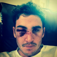Craig Kieswetter nailed the 'Cricket is a Tough Game' Selfie