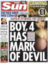 The Sun criticised for 'irresponsible' front page of boy with 'devil mark'