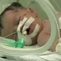 'Miracle' Gaza baby born to dead mother is said to have died