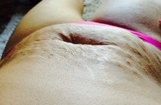 Mother of 5 writes viral Facebook post after being ridiculed for her stretch marks