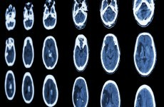 """Every minute counts."" - Study shows why treating strokes immediately is vital"
