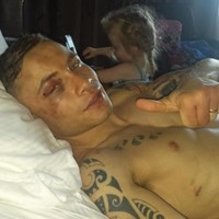 Carl Frampton may have broken his hand in the middle of Saturday's world title win