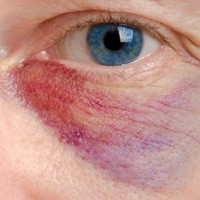A Week in the Family Court: Domestic violence applications rose by 5% in 2013