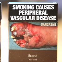 France to follow Ireland's lead with plain cigarette packaging