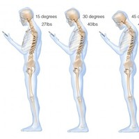 This is what looking down at your phone does to your spine