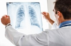Lung cancer deaths have increased in Ireland