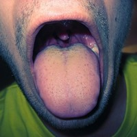 Guinness record set for world's largest… tonsils