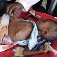 UN declares famine in parts of Somalia