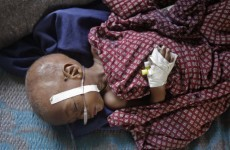 UN launches urgent appeal for donor help in East Africa