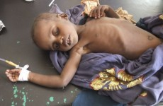 UN warns famine will spread in Somalia