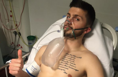 Shane Long is on the mend after suffering rib injury during FA Cup clash