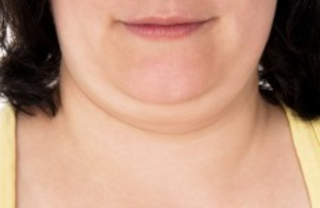 a new injection could cure double chins the daily edge