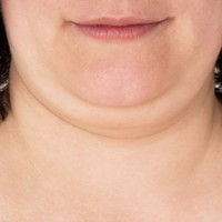 A new injection could 'cure' double chins
